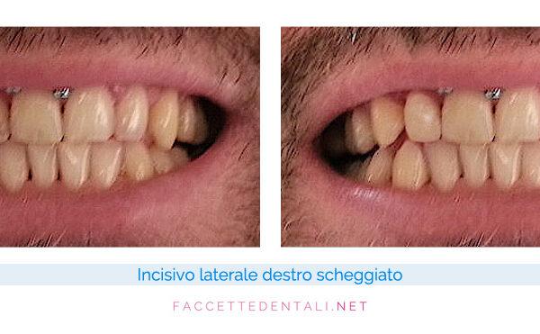 faccette dentali dentista torino trotta