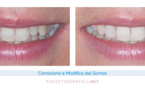 faccette-dentali-dentista-torino-trotta-10