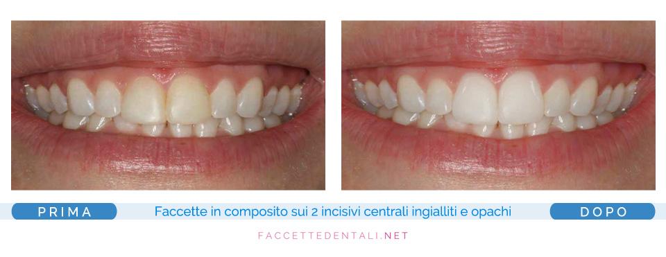 Dentista Faccette Dentali Torino