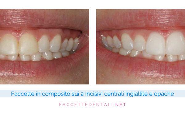 faccette-dentali-dentista-torino-trotta-13